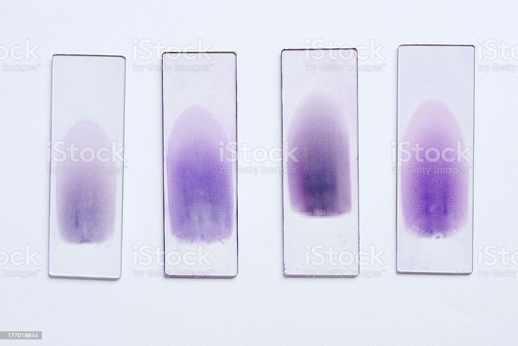 Laboratory slides of blood tests with purple stains stock photo