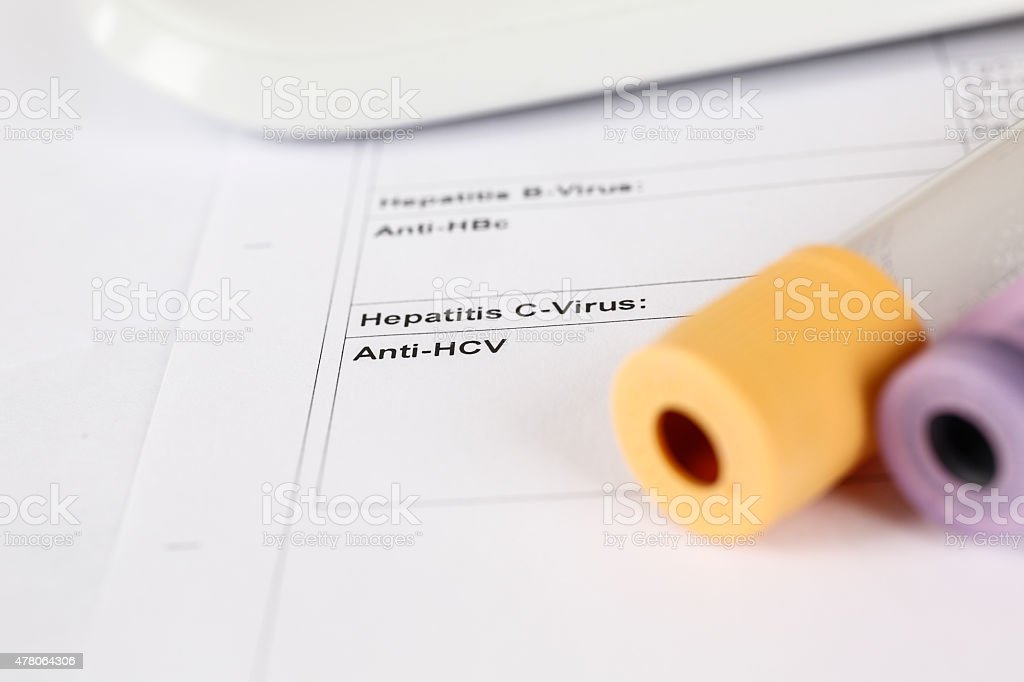 Laboratory test, Hepatitis C, blood tubes on paper stock photo