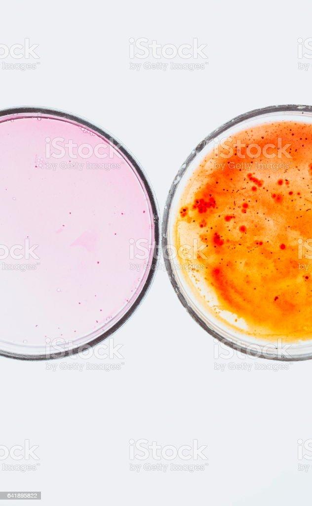 Laboruntersuchungen für bakterielle Infektion – Foto