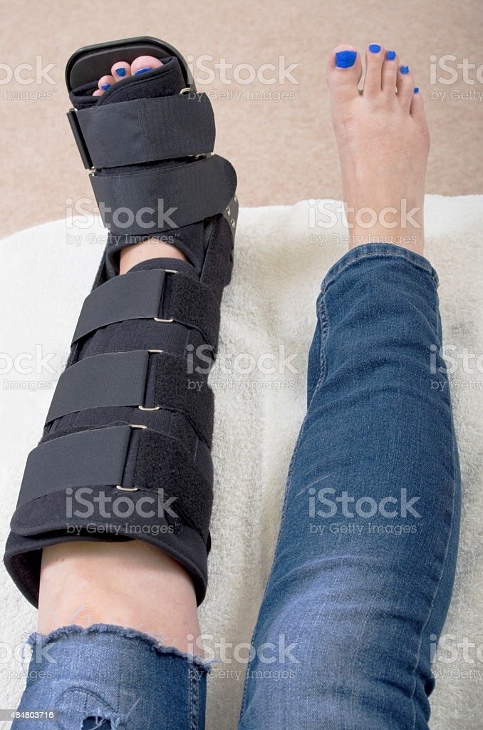 Lady with Fractured Leg stock photo