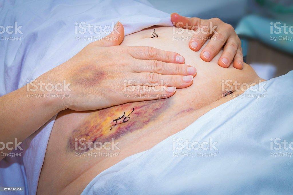 Laparoscopic surgery scars and bruises stock photo