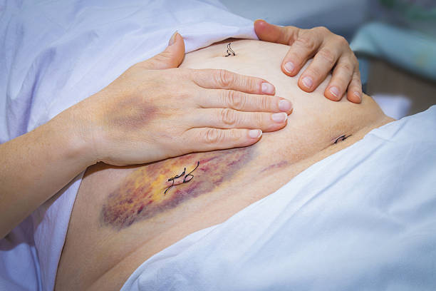 Laparoscopic surgery scars and bruises stock photo