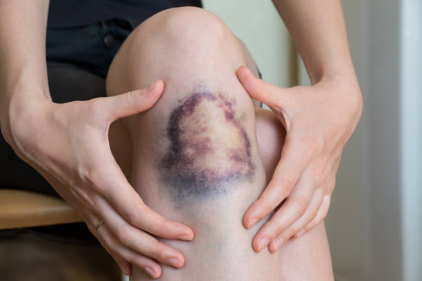 Large bruise damage on knee of young woman stock photo