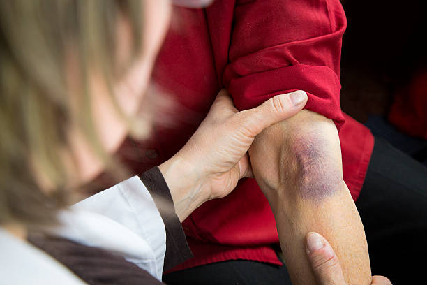 Large bruise on human arm stock photo