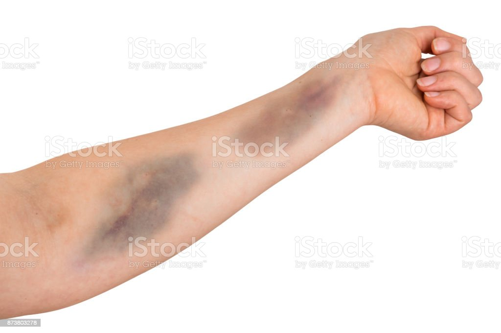 Large bruise on human arm stock photo