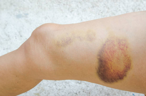 Large bruise on human leg. Injection bruises. Doctor and patient stock photo