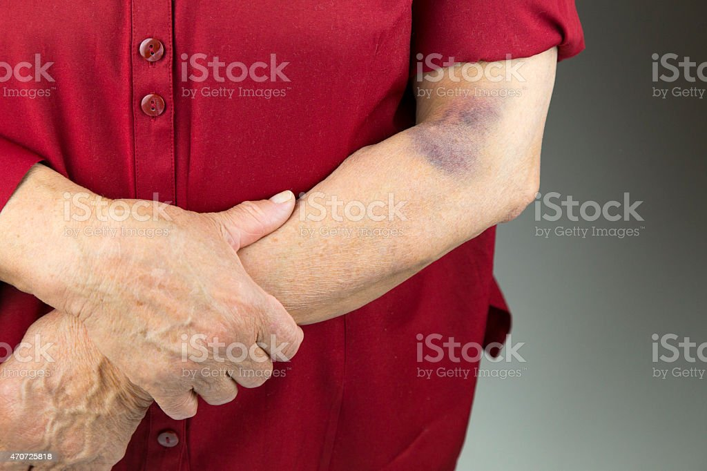 Large hematoma on human arm stock photo