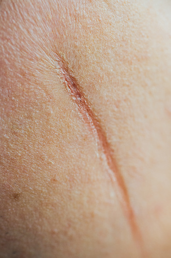 istock large scar on on face the cheek of a man. Mangle, wound, cut of a knife. Unrecognizable 803640486