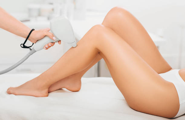 laser epilation, Laser hair removal legs, legs close-up beautician removes hair on beautiful female legs using a laser. hair removal on the legs, laser procedure at clinic laser stock pictures, royalty-free photos & images