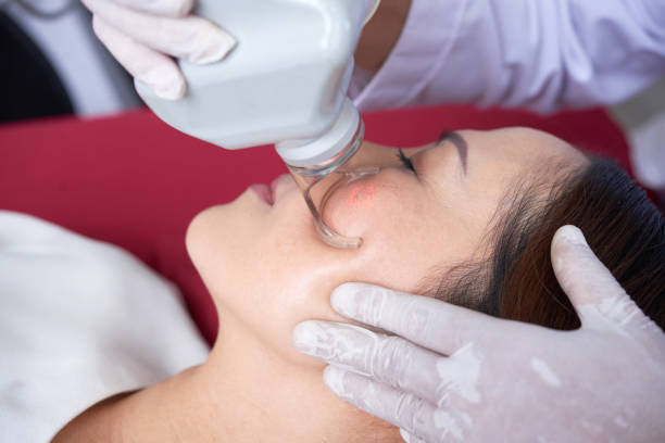 Laser face treatment stock photo