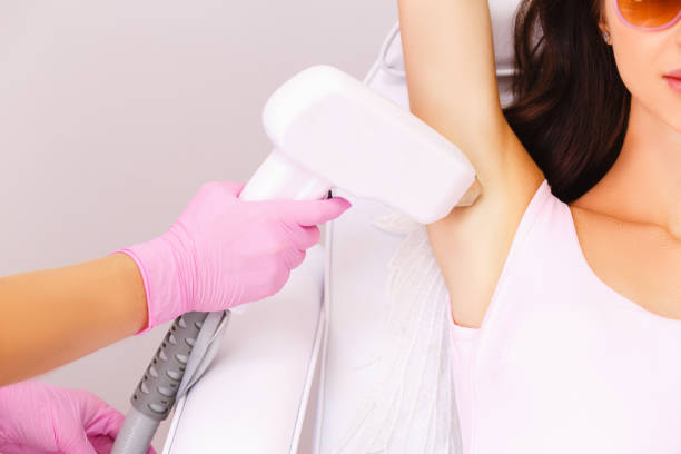 Laser hair removal in professional beauty studio. Armpits. Laser hair removal in professional beauty studio.- Image laser stock pictures, royalty-free photos & images