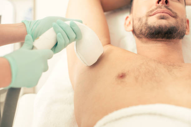 Laser hair removal of the armpit zone of the man stock photo