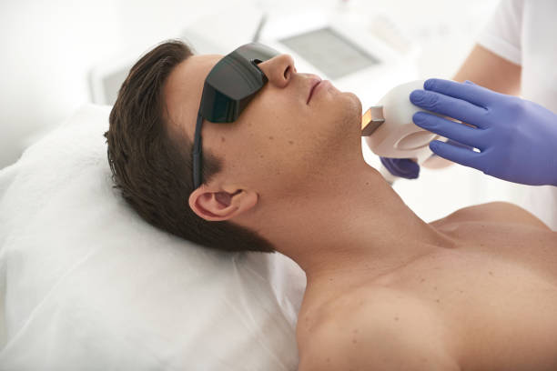 Laser hair removal procedure of young man stock photo