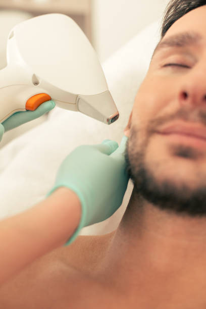Laser hair removal procedure on the ear of man stock photo