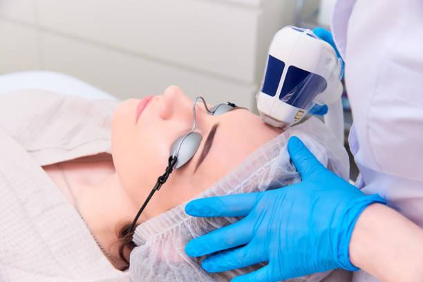 laser procedure in the clinic of laser cosmetology. - viziarsi foto e immagini stock