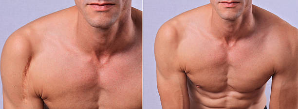 laser scar removal before and after. - shoulder surgery stock photos and pictures