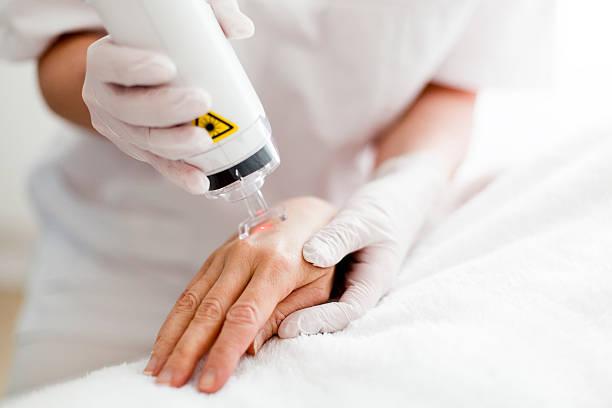 Laser Skin Resurfacing stock photo