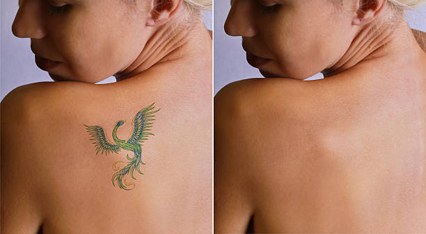 laser tattoo removal befor and after. - tattoo removal stock pictures, royalty-free photos & images