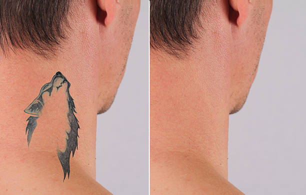 laser tattoo removal before and after - tattoo removal stock pictures, royalty-free photos & images