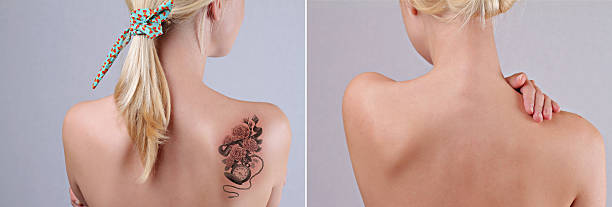 laser tattoo removal before and after. - tattoo removal stock pictures, royalty-free photos & images