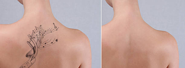 laser tattoo removal before and after. - tattoo removal stock photos and pictures