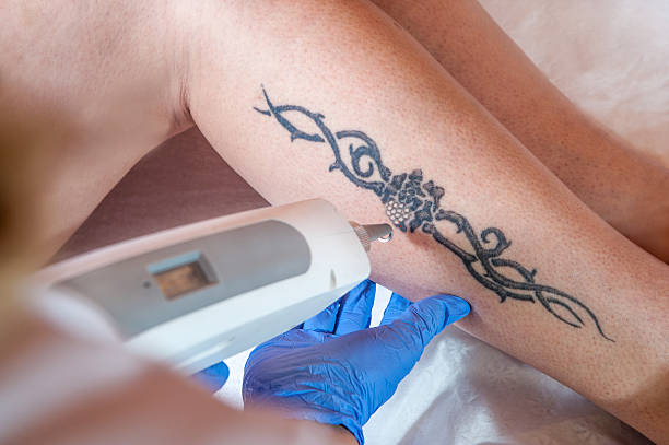 laser tattoo removal from leg - foto stock