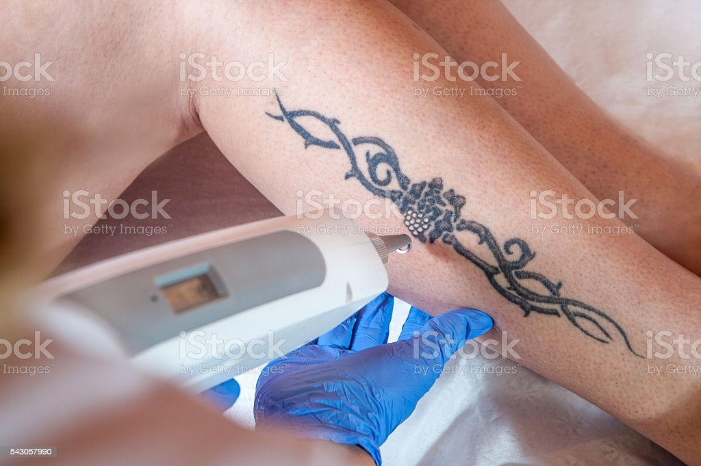 laser tattoo removal from leg stock photo