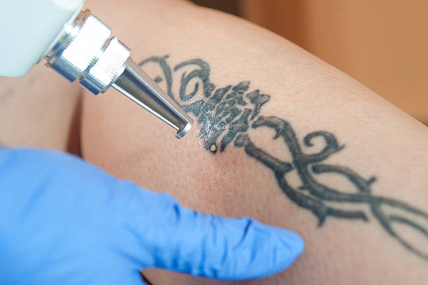 laser tattoo removal from leg - tattoo removal stock pictures, royalty-free photos & images