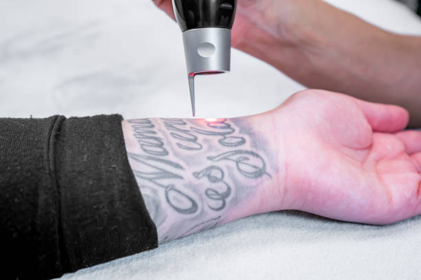 laser tattoo removal of a large tattoo on a patient's arm, using picosecond laser technology, in a beauty and medical laser clinic. technician is holding the hand piece. - tattoo removal stock pictures, royalty-free photos & images