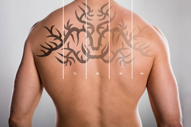 laser tattoo removal on man's back - tattoo removal stock pictures, royalty-free photos & images