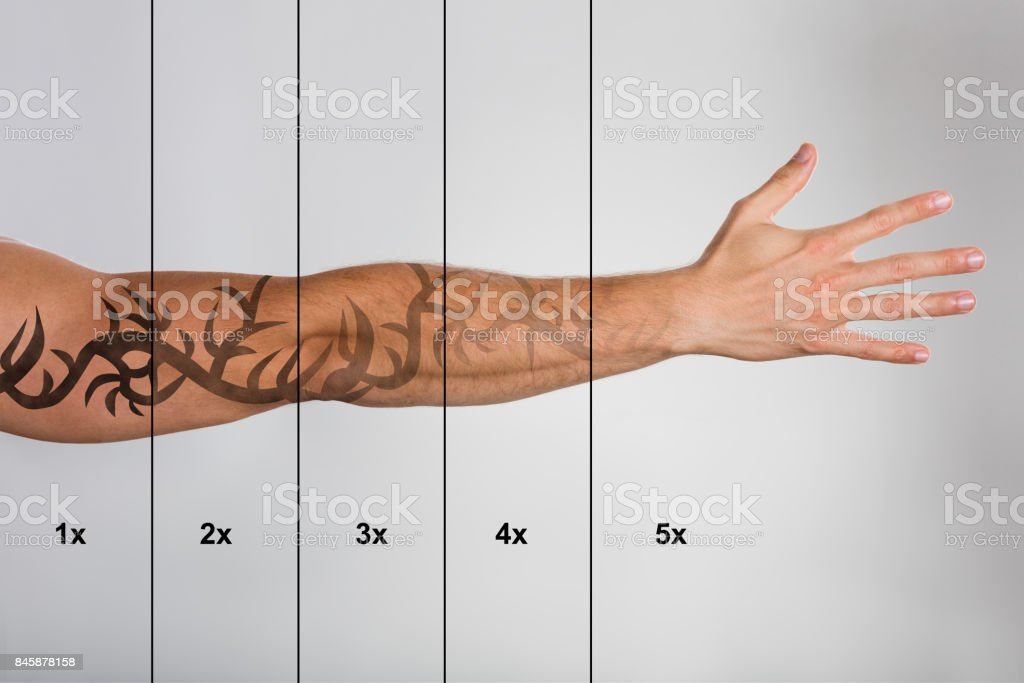 Laser Tattoo Removal On Man's Hand stock photo