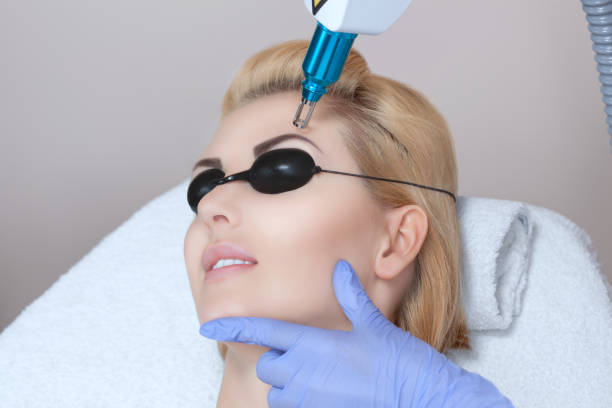 laser tattoo removal on woman's eyebrows - tattoo removal stock pictures, royalty-free photos & images