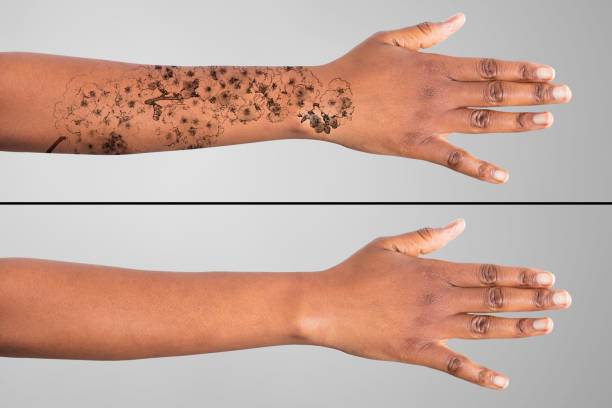 laser tattoo removal on woman's hand - tattoo removal stock pictures, royalty-free photos & images
