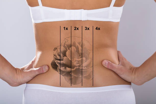 laser tattoo removal on woman's hip - tattoo removal stock pictures, royalty-free photos & images