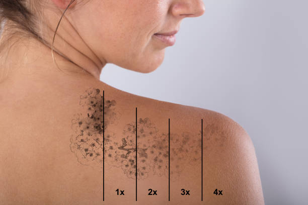 laser tattoo removal on woman's shoulder - tattoo removal stock pictures, royalty-free photos & images