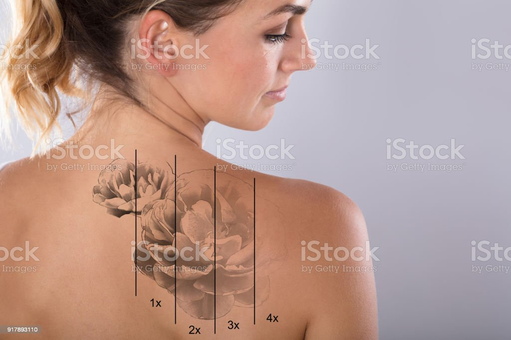 Laser Tattoo Removal On Woman's Shoulder stock photo