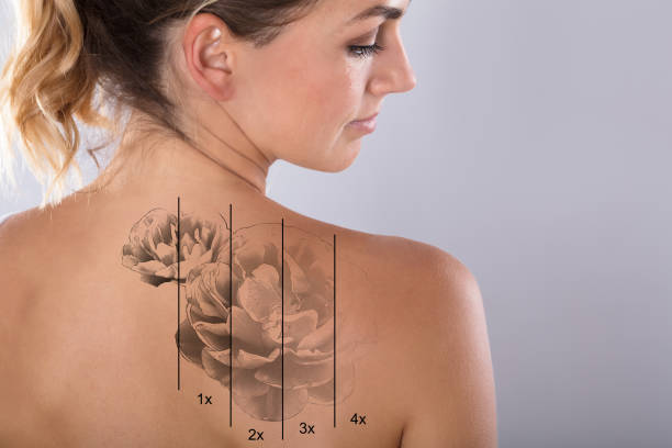 Laser Tattoo Removal On Woman's Shoulder - foto stock