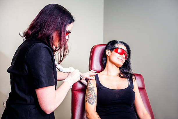laser tattoo removal - tattoo removal stock pictures, royalty-free photos & images