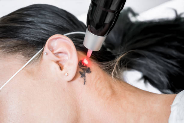 laser tattoo removal treatment session on patient, using picosecond technology, to break down tattoo ink into smaller particles. at a beauty and skincare clinic for aesthetic lasers. - tattoo removal stock pictures, royalty-free photos & images