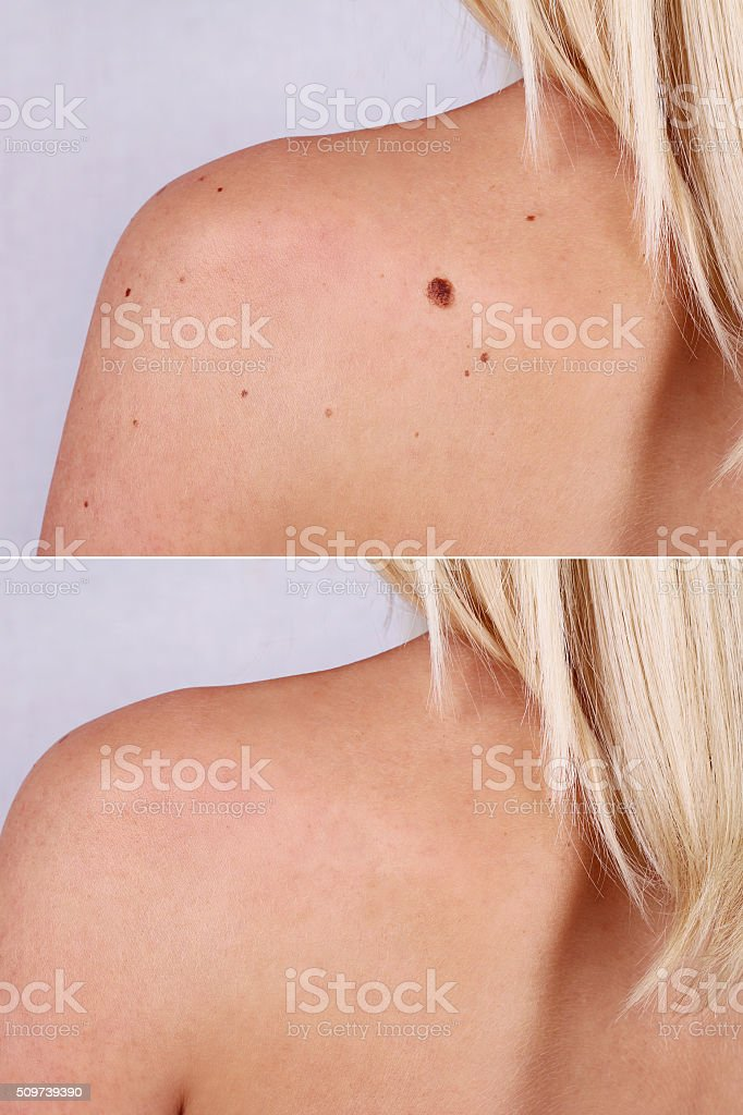 Laser treatment for birthmark removal before and after. stock photo