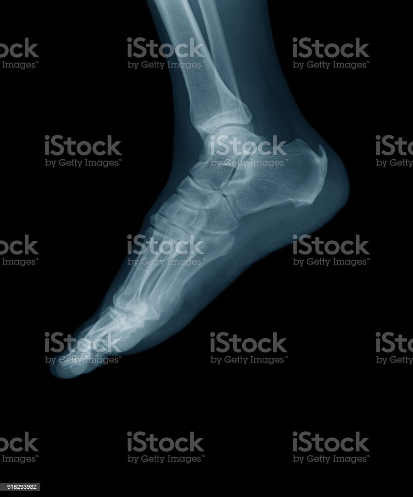 Lateral foot x-ray image stock photo