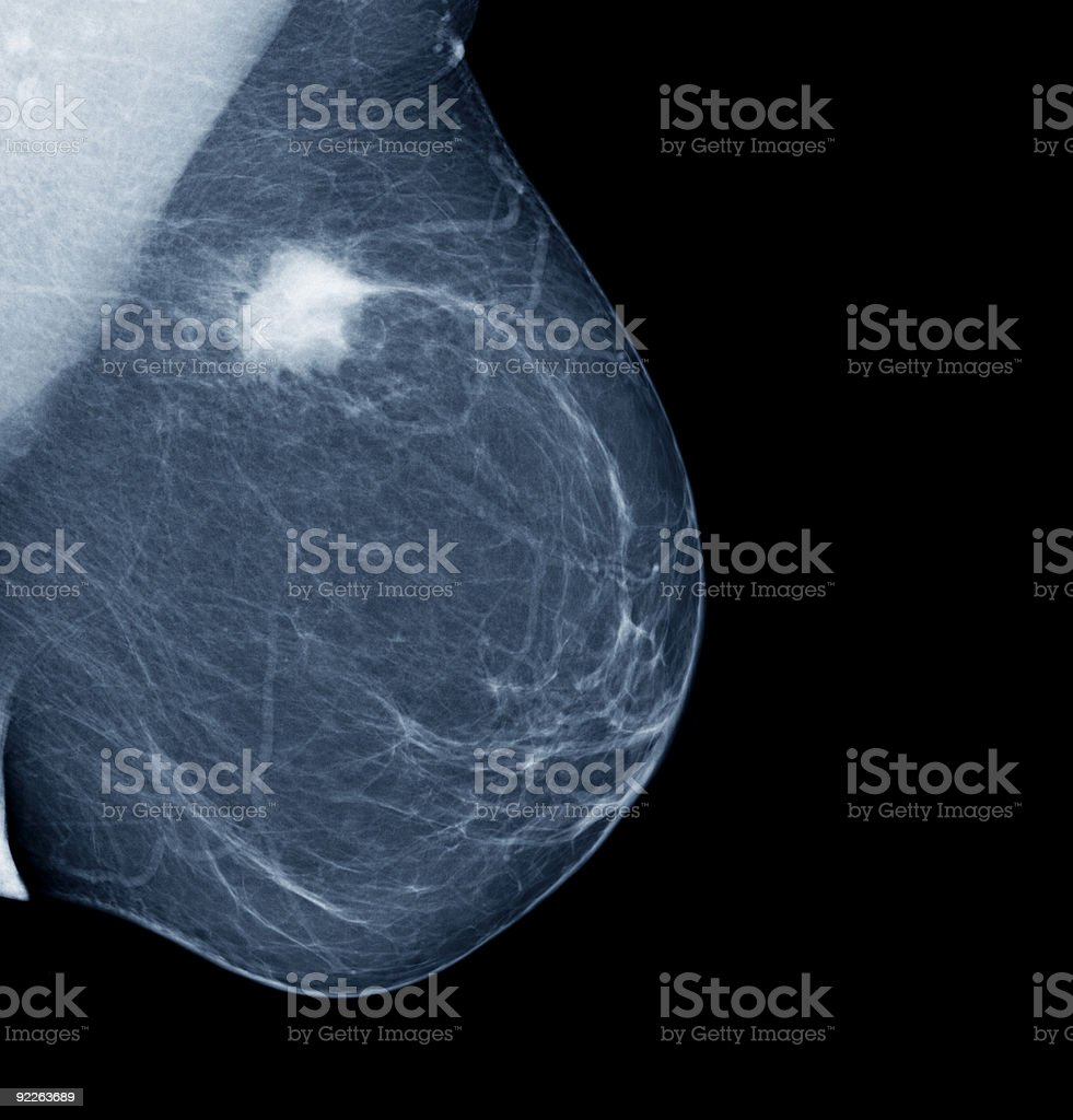 Lateral mammogram of female breast with tumor stock photo