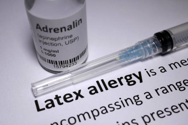 latex allergy anaphylactic shock - latex stock pictures, royalty-free photos & images
