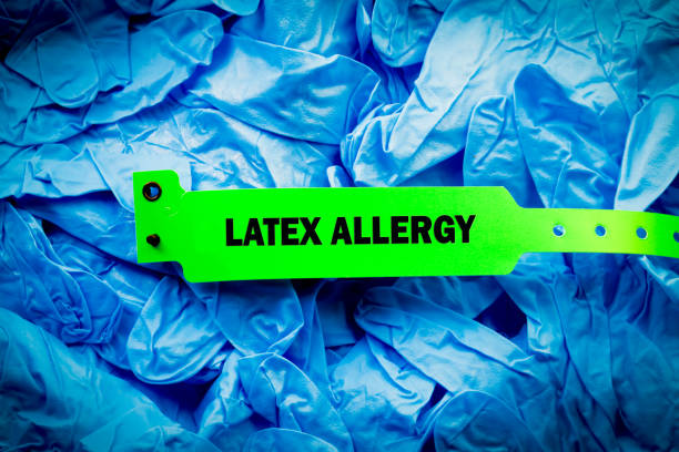 latex allergy hospital band - latex stock pictures, royalty-free photos & images