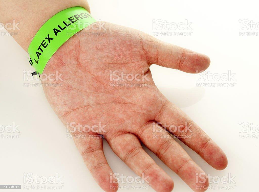 Latex Allergy Rash stock photo