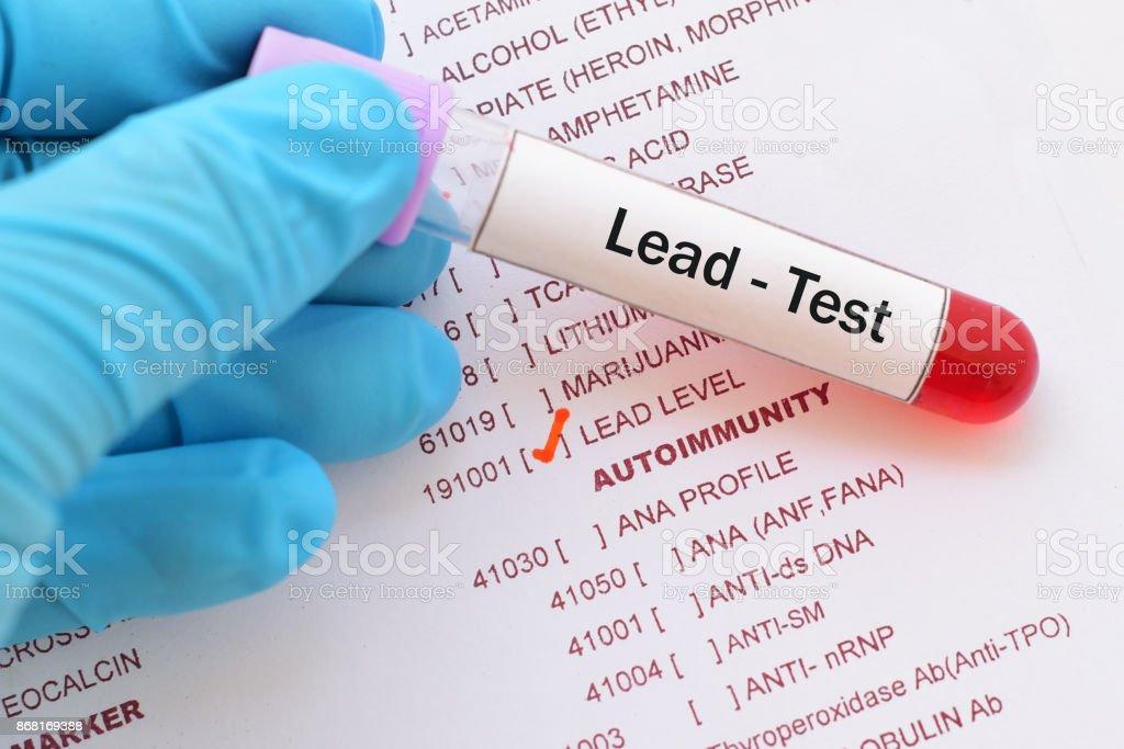 Lead (Pb) test stock photo