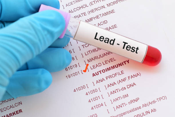 lead (pb) test - poisonous stock pictures, royalty-free photos & images
