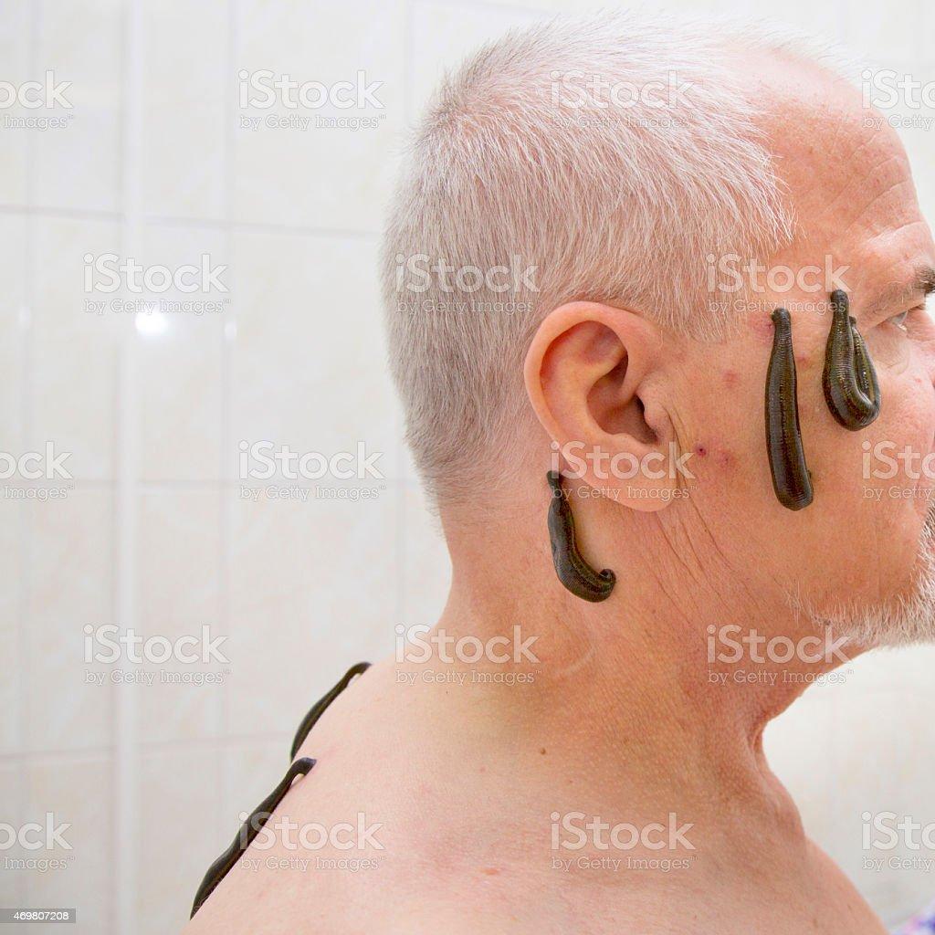 Leech therapy stock photo