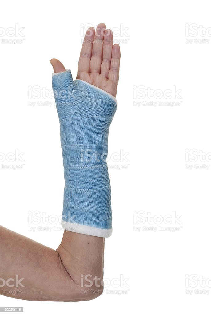 Left arm in blue cast. royalty-free stock photo