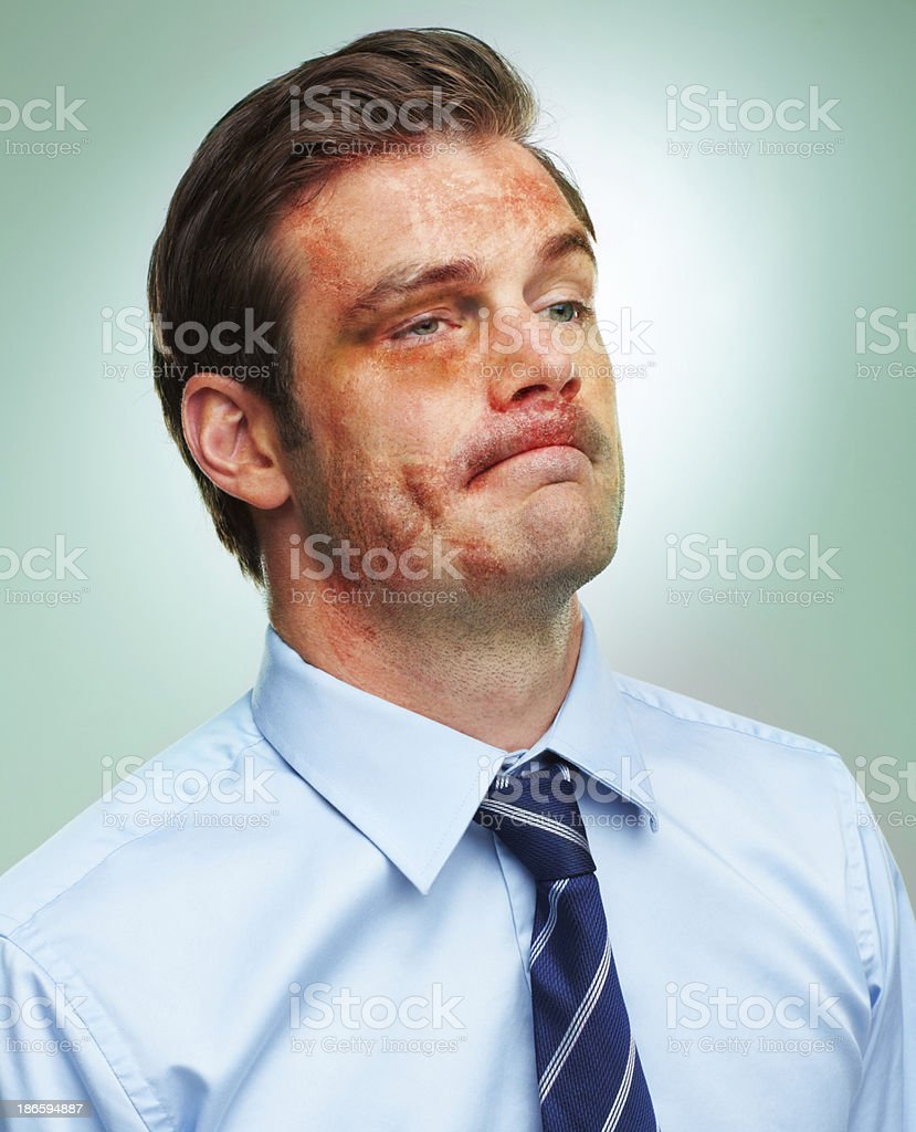 Left bloodied and bruised after a corporate battle stock photo